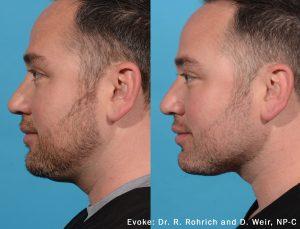 Evoke Before & After