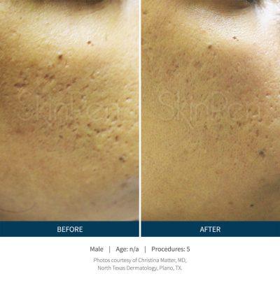SkinPen® Microneedling